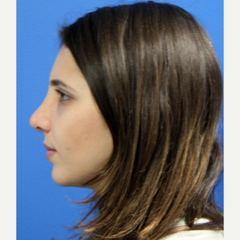 25-34 year old woman treated with Nose Surgery after 3340207
