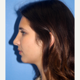 25-34 year old woman treated with Nose Surgery before 3340207