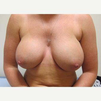Breast Implants Without A Breast Lift after 3837415