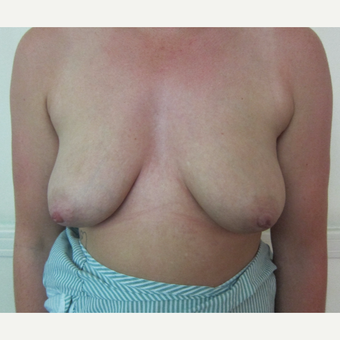 Breast Implants Without A Breast Lift before 3837415