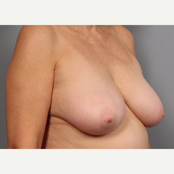 55-64 year old woman treated with Breast Lift before 3412526