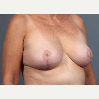 55-64 year old woman treated with Breast Lift after 3412526