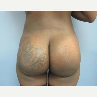 25-34 year old woman treated with Butt Implants and Liposuction of the Back after 2831562