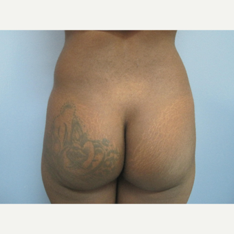 25-34 year old woman treated with Butt Implants and Liposuction of the Back before 2831562