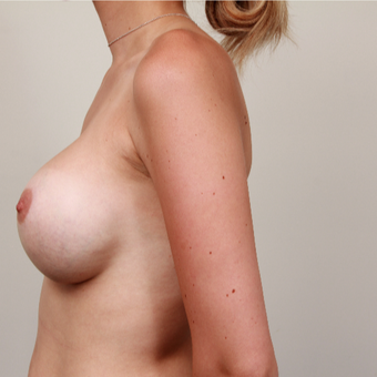 25-34 year old woman treated with Breast Implant Revision after 3075221