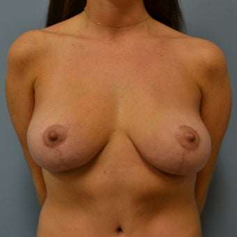 Breast Reduction  after 1366339