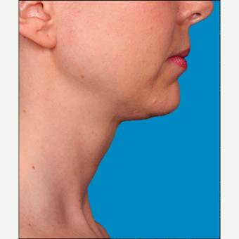 "35-44 year old woman treated with Kybella for corruption of sub mental fullness /""double chin"" after 2334990"