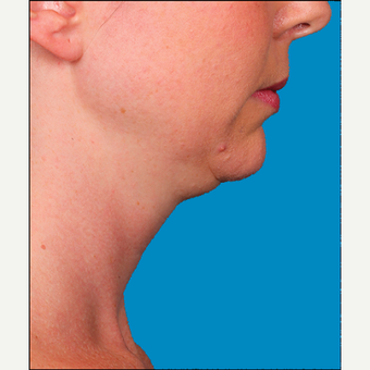 "35-44 year old woman treated with Kybella for corruption of sub mental fullness /""double chin"" before 2334990"