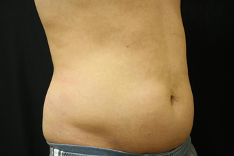 CoolSculpting before 1526650