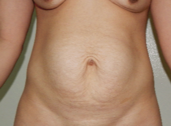 25-34 year old woman treated with Tummy Tuck before 3370490
