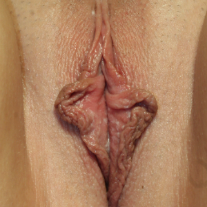 25-34 year old woman treated with Vaginal Rejuvenation before 3555268