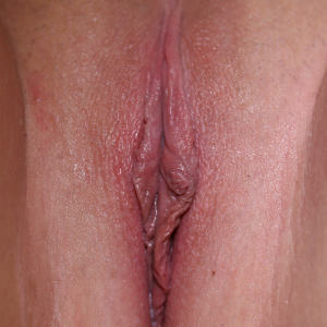 25-34 year old woman treated with Vaginal Rejuvenation after 3555268