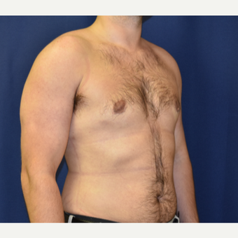 25-34 year old man treated with Male Breast Reduction after 3787099
