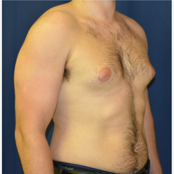 25-34 year old man treated with Male Breast Reduction before 3787099