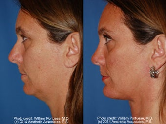 Neck Liposuction before 1389723