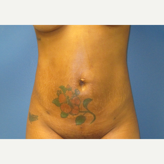 25-34 year old woman treated with Liposuction after 3725459