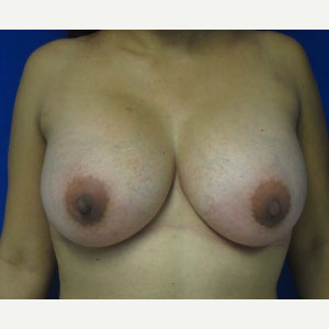 Breast Augmentation after 3054949
