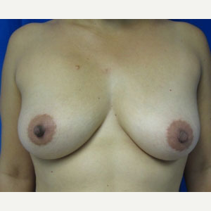 Breast Augmentation before 3054949