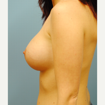 25-34 year old woman treated with Breast Augmentation after 3061123
