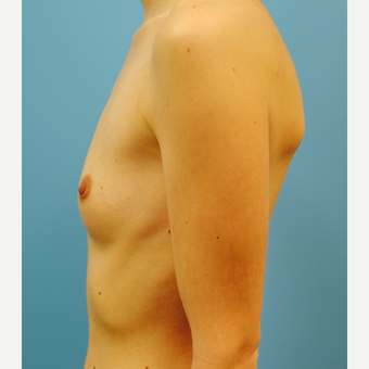 25-34 year old woman treated with Breast Augmentation before 3061123