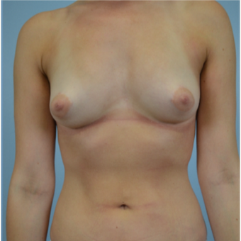 26 year old woman treated with Breast Fat Transfer after 3432190