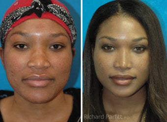 30 year old African American Rhinoplasty Madison WI before 1097470