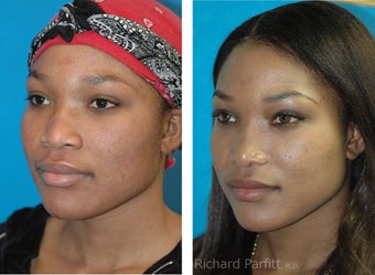 30 year old African American Rhinoplasty Madison WI after 1097470
