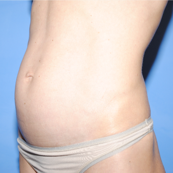 35-44 year old woman treated with Mini Tummy Tuck before 3763178