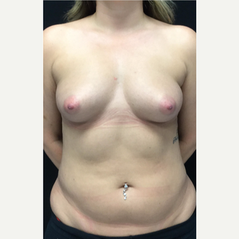 25-34 year old woman treated with Butt Augmentation before 3583240