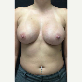 25-34 year old woman treated with Butt Augmentation after 3583240