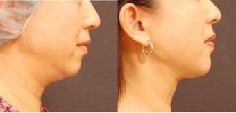 Chin and Jaw liposuction with SlimLipo before 684490