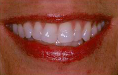 Teeth Whitening Using In Office Treatment