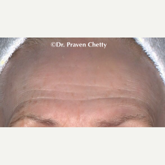 55-64 year old woman treated with Botox before 3383131