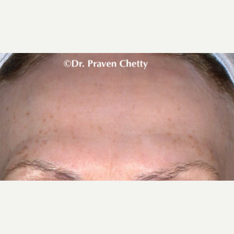 55-64 year old woman treated with Botox after 3383131