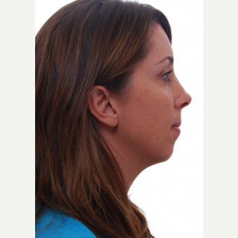 35-44 year old woman treated with Chin Implant before 2417069