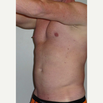 35-44 year old man treated with Vaser Liposuction before 3382565