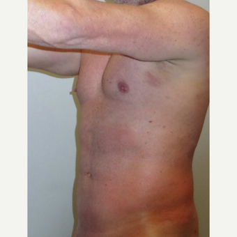 35-44 year old man treated with Vaser Liposuction after 3382565