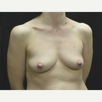 35-44 year old woman treated with Breast Implants before 3181769