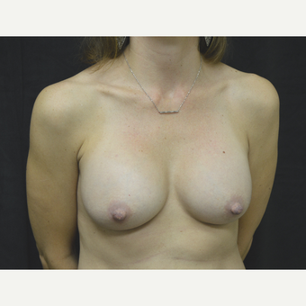 35-44 year old woman treated with Breast Implants after 3181769