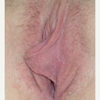 25-34 year old woman treated with Labiaplasty before 3175232