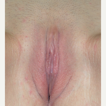25-34 year old woman treated with Labiaplasty after 3175232