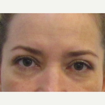 48 year old woman treated with Upper Eyelid Surgery after 2550250