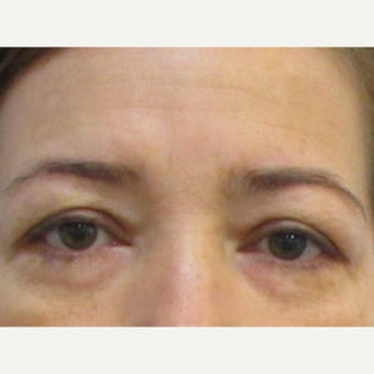 48 year old woman treated with Upper Eyelid Surgery before 2550250