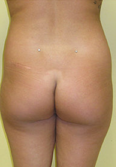 Buttock Enhancement 459490