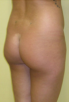 Buttock Enhancement before 459490