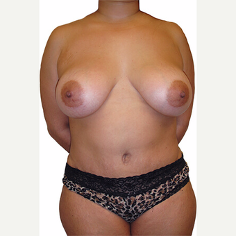 37 year old woman treated with Breast Augmentation after 3544767