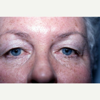 55-64 year old woman treated with Eyelid Surgery before 1942290