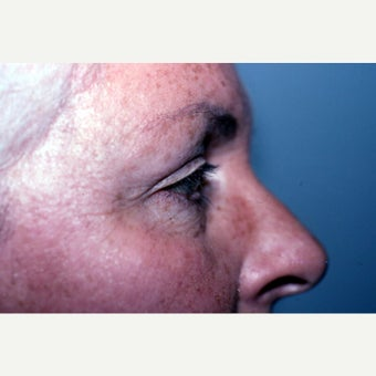 55-64 year old woman treated with Eyelid Surgery 1942290