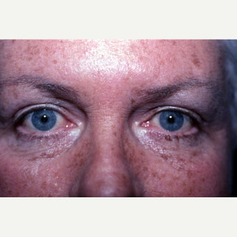 55-64 year old woman treated with Eyelid Surgery after 1942290