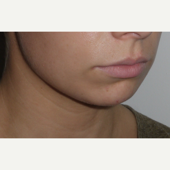 Young woman treated with Chin Implant before 3001835